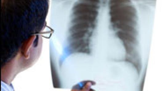 911系列专题第七集:《不散的烟尘:后9.11医疗赔偿案始末》
