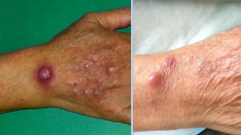华人海鲜档爆罕见病菌 引发超30例皮肤感染