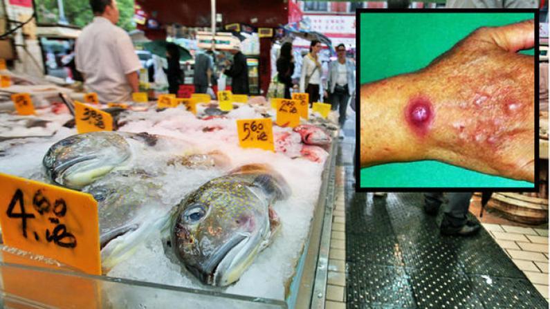 海鲜惹祸!纽约华社爆发罕见皮肤病菌感染