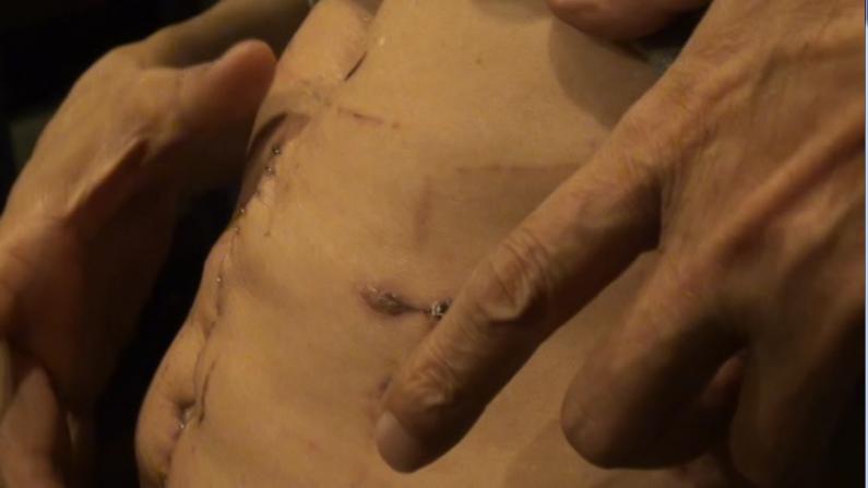 纽约华裔长巴司机北卡遭残暴抢劫 腹部被捅受重伤