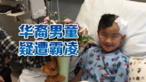 加州华裔男童疑遭校园霸凌脑部受伤 学校改口否认引家长质疑