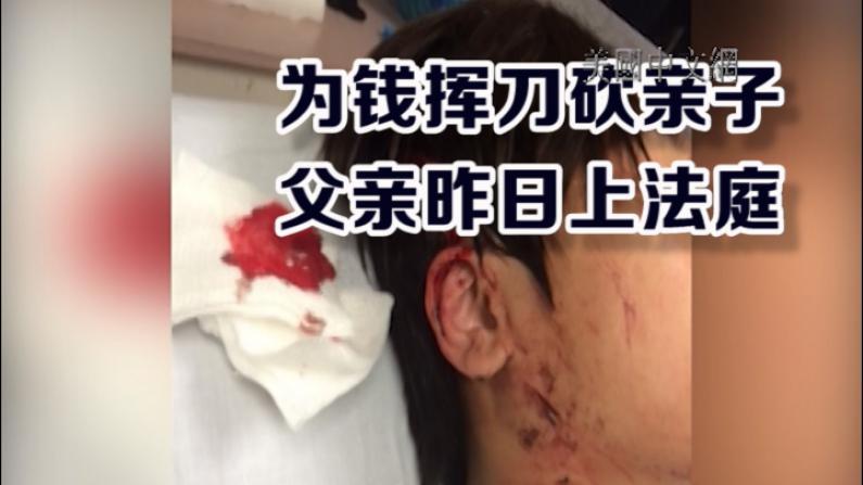 父亲要钱不成挥刀砍子  华裔少年被家暴案3号开庭