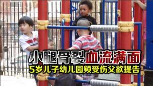 小腿骨裂血流满面 5岁儿子幼儿园频受伤父欲提告