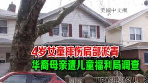 4岁女童摔伤肩部淤青 华裔母亲遭儿童福利局调查