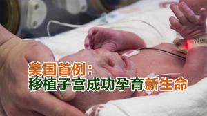美国首例: 移植子宫成功孕育新生命