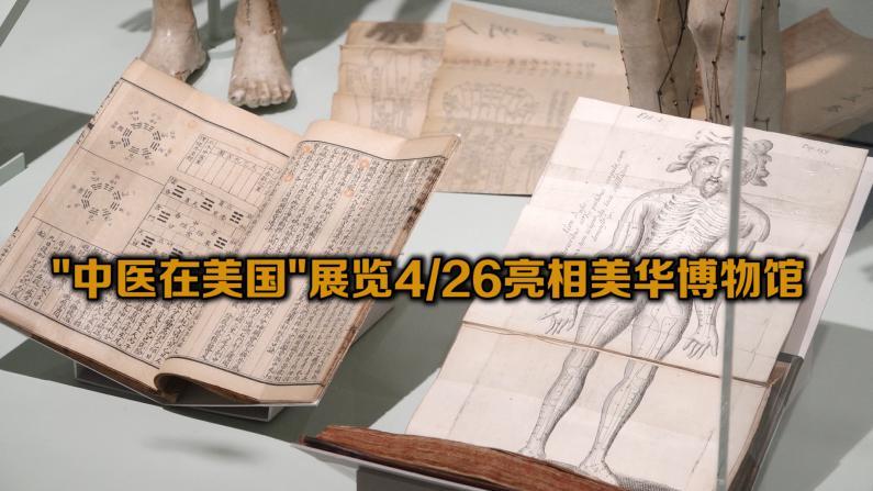 """""""中医在美国""""展览4/26亮相美华博物馆"""