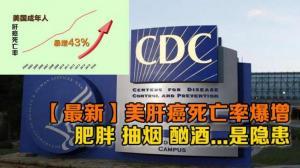 【最新】美肝癌死亡率爆增 肥胖 抽烟 酗酒...是隐患