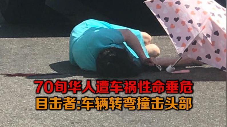 7旬华人遭车祸性命垂危 目击者:车辆转弯撞击头部