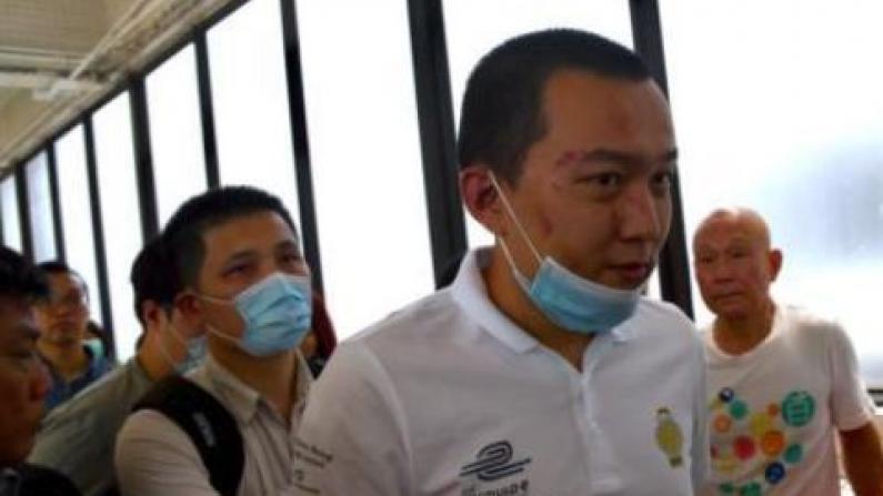 香港机场遭围殴记者出院:我不应受暴力对待