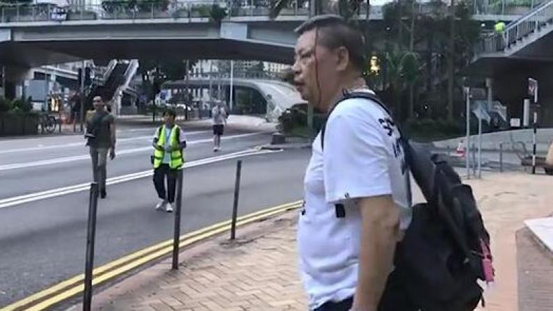 (粗口慎入)香港示威暴徒穷凶极恶 打爆市民头