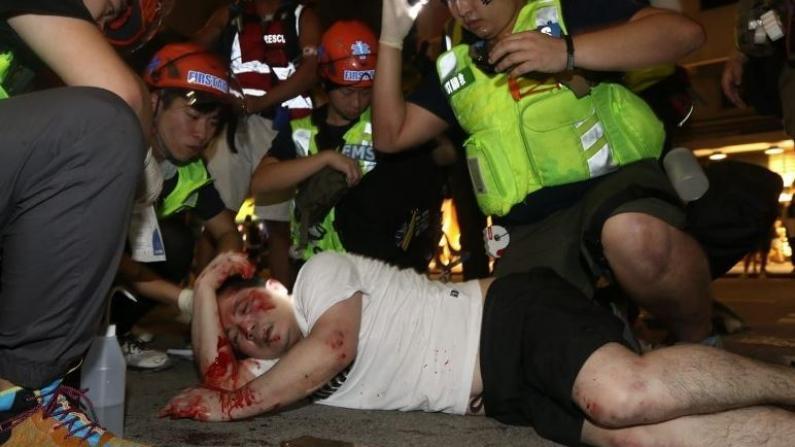 触目惊心!香港示威暴徒残忍围殴市民