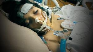 器官衰竭几乎丧命 新奥尔良女孩亲历新冠相关儿童病