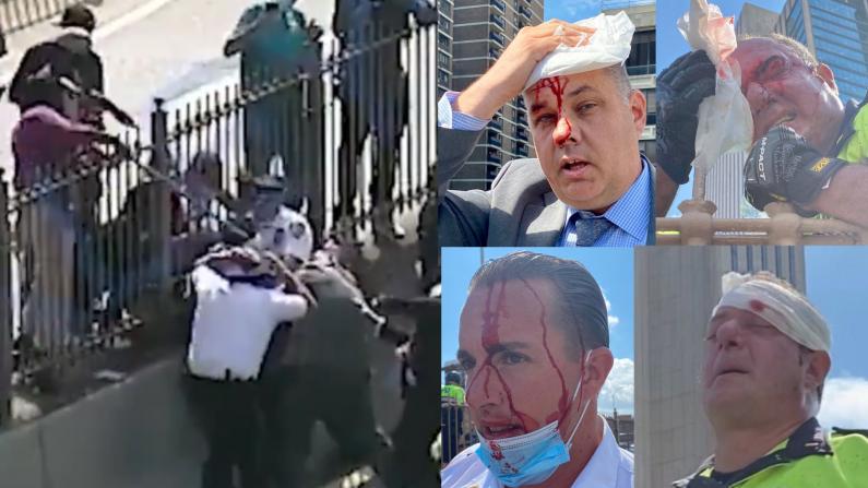 反警示威者与NYPD激烈冲突 总警司受伤满脸鲜血