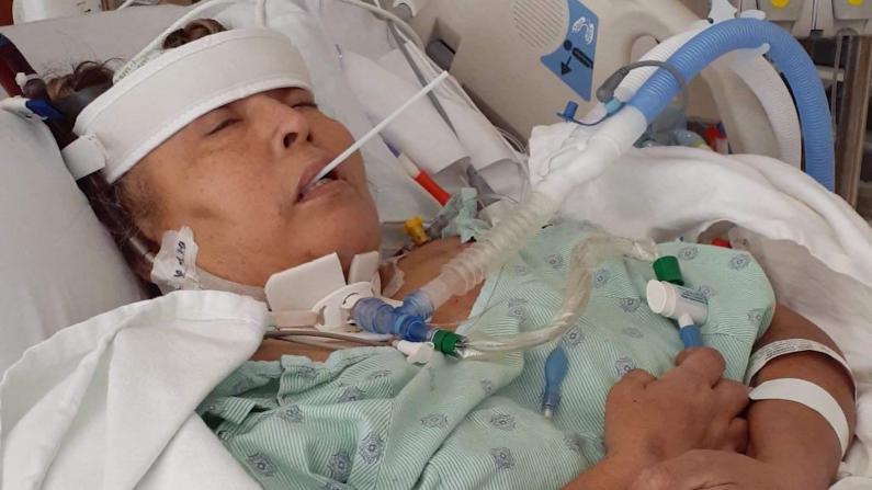 鬼门关前走一遭……新冠病患住院治疗半年后现身说法