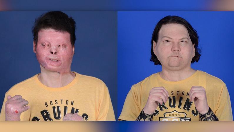 重获新生!新州男子成功接受面部+双手移植手术 全美首例