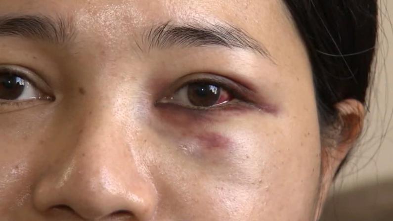 旧金山亚裔女子乘地铁 被打遭抢手机