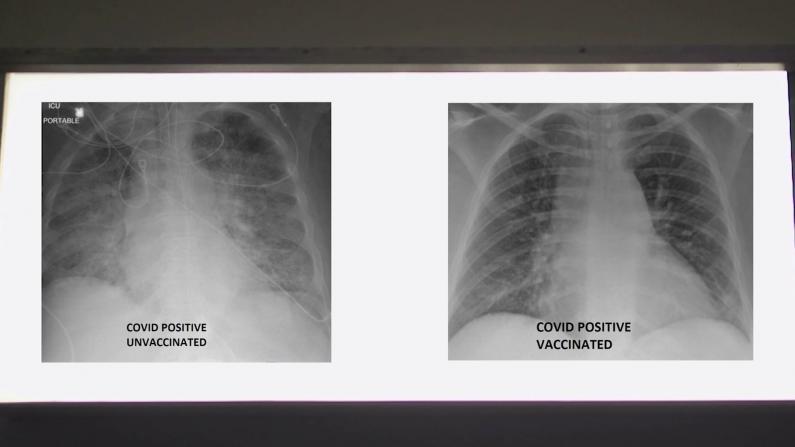 接不接种新冠疫苗到底有什么区别?一张X光片告诉你