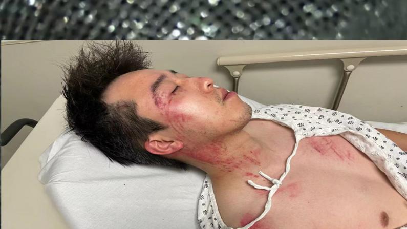 追尾事故后 纽约华裔雨中惨遭长时间辱骂暴打